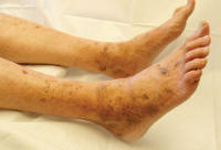 Posthrombotic pigmentation
