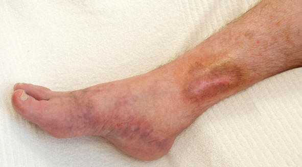 Healed skin ulcer and postthrombotic pigmentation