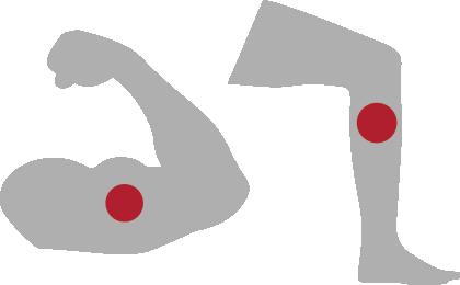 DVT in arm or leg