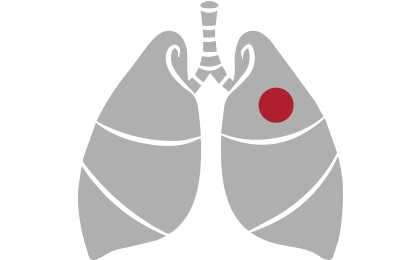 DVT lung