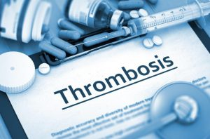 thrombosis on paper