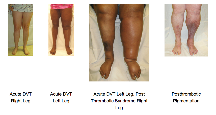 DVT - Post Thrombotic Pictures