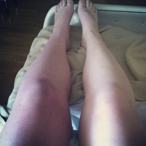 Purple Leg