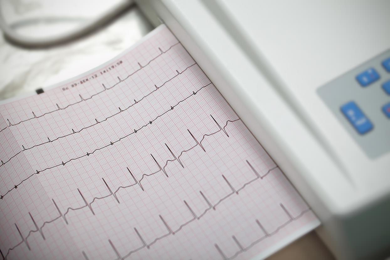 cardiography_mini