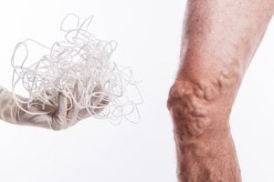 thrombosed varicose vein