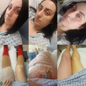 The Perfect Provoked Storm: Jessica's Story | Blood Clots