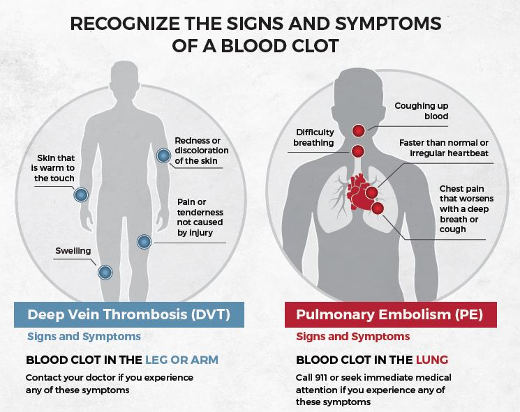 symptoms of clotting